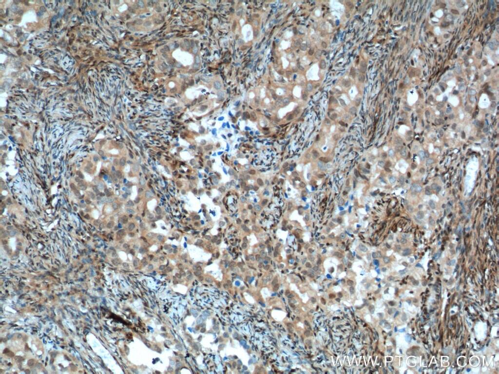P27/KIP1 Antibody in Immunohistochemistry (Paraffin) (IHC (P))