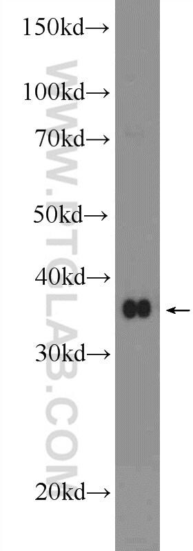 BHLHE22 Antibody in Western Blot (WB)