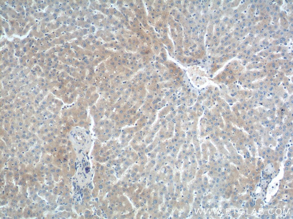 DENND1A Antibody in Immunohistochemistry (Paraffin) (IHC (P))