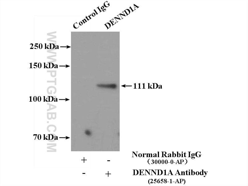 DENND1A Antibody in Immunoprecipitation (IP)