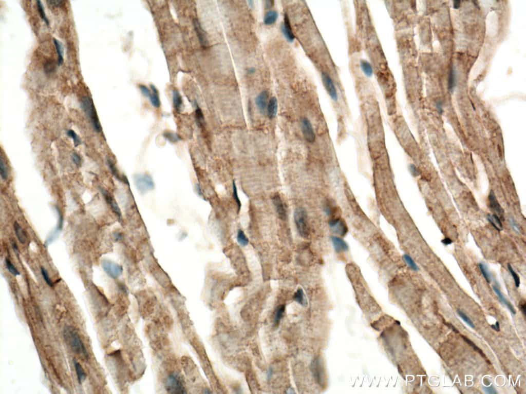 CERK Antibody in Immunohistochemistry (Paraffin) (IHC (P))