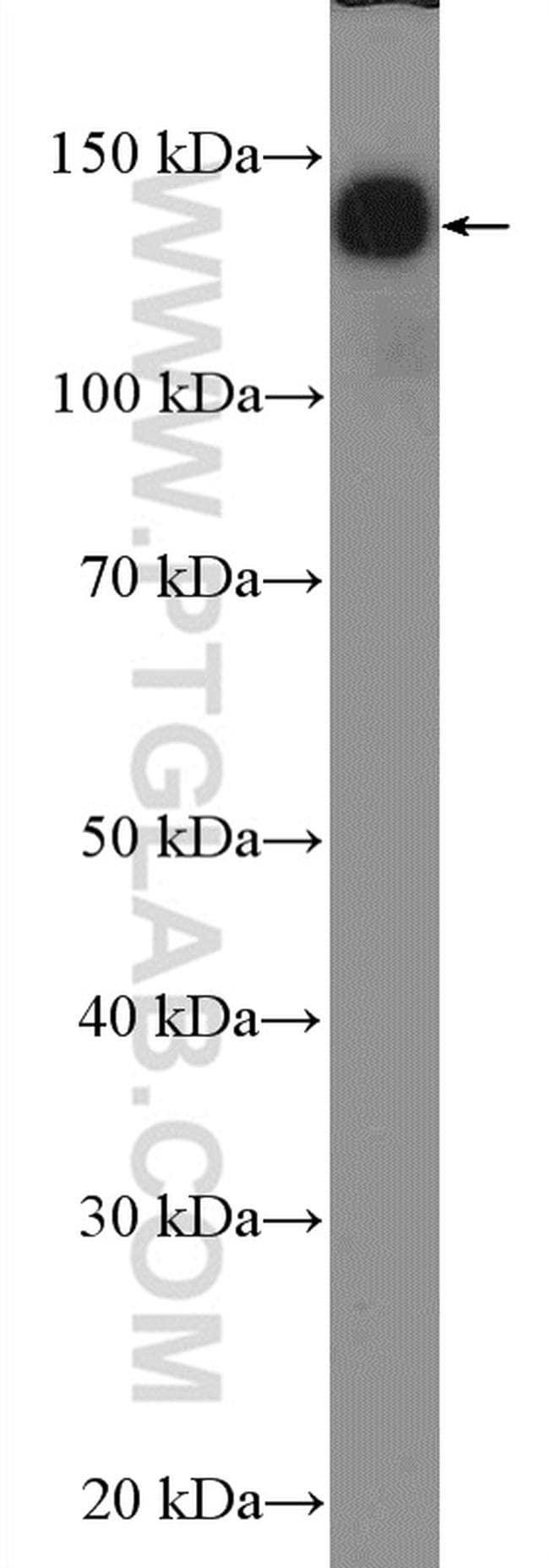 NF-M Antibody in Western Blot (WB)
