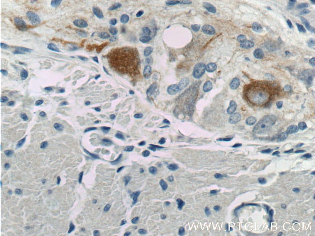 NF-M Antibody in Immunohistochemistry (Paraffin) (IHC (P))