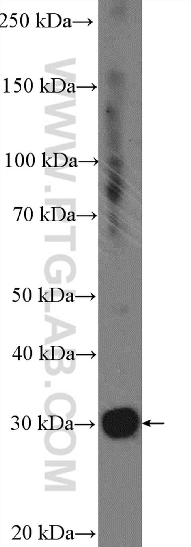 FAM125A Antibody in Western Blot (WB)
