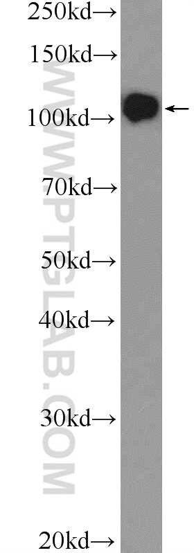 DGCR8 N-terminal Antibody in Western Blot (WB)