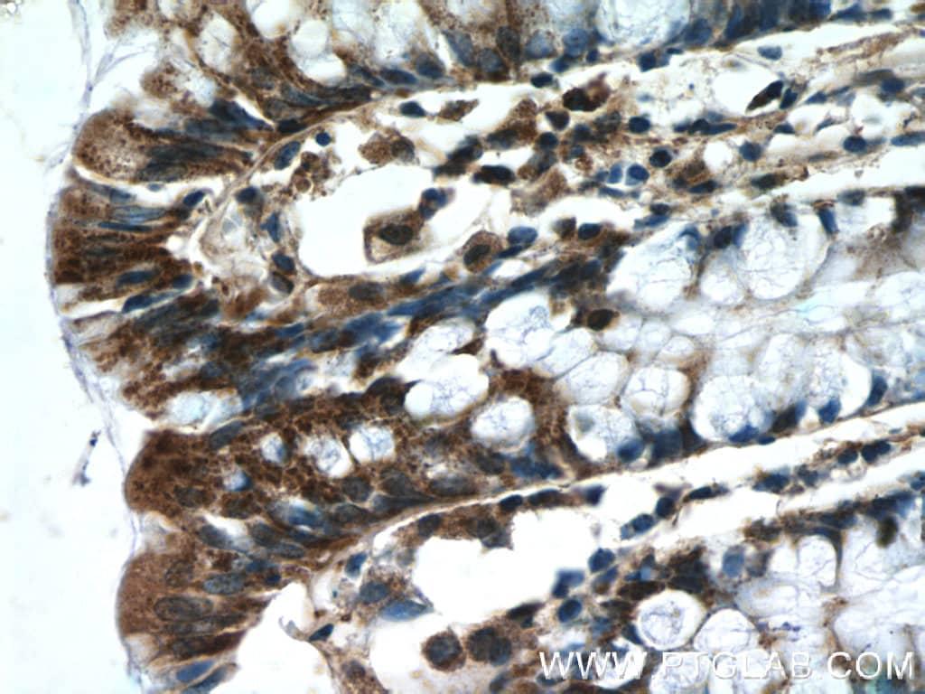 IDH3G Antibody in Immunohistochemistry (Paraffin) (IHC (P))