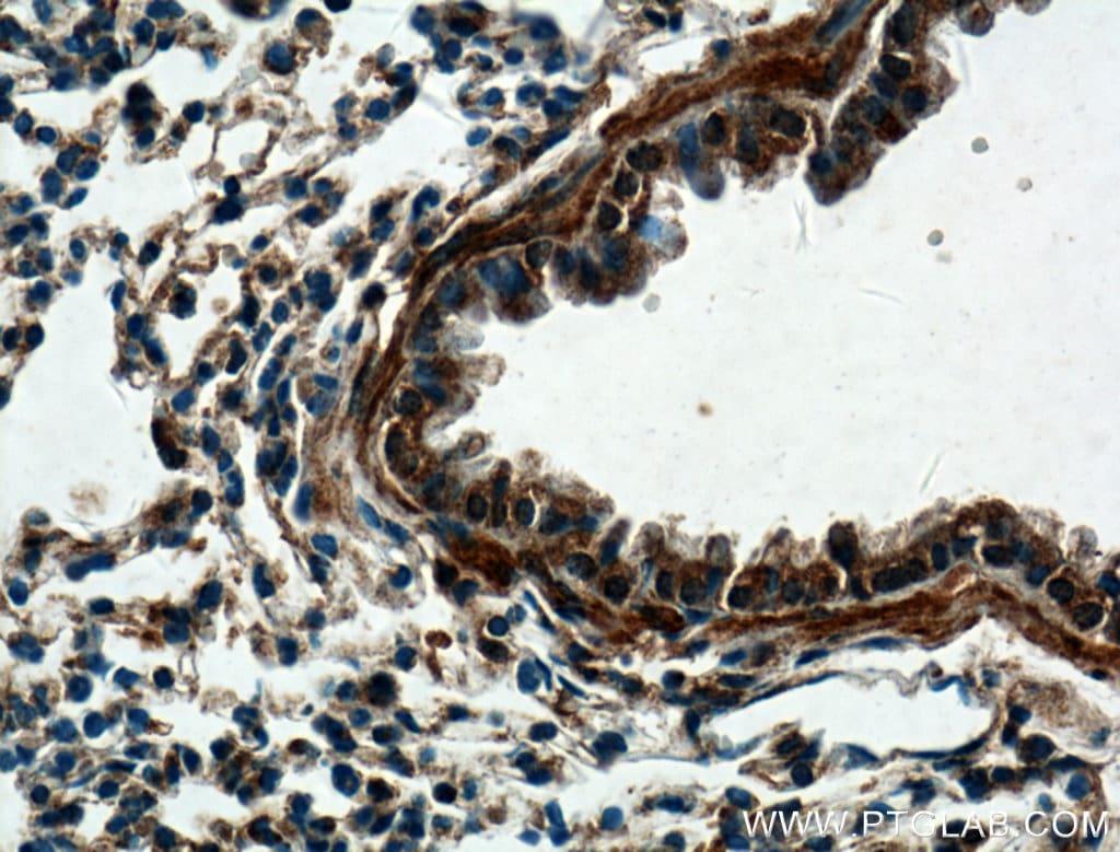 DECR2 Antibody in Immunohistochemistry (Paraffin) (IHC (P))