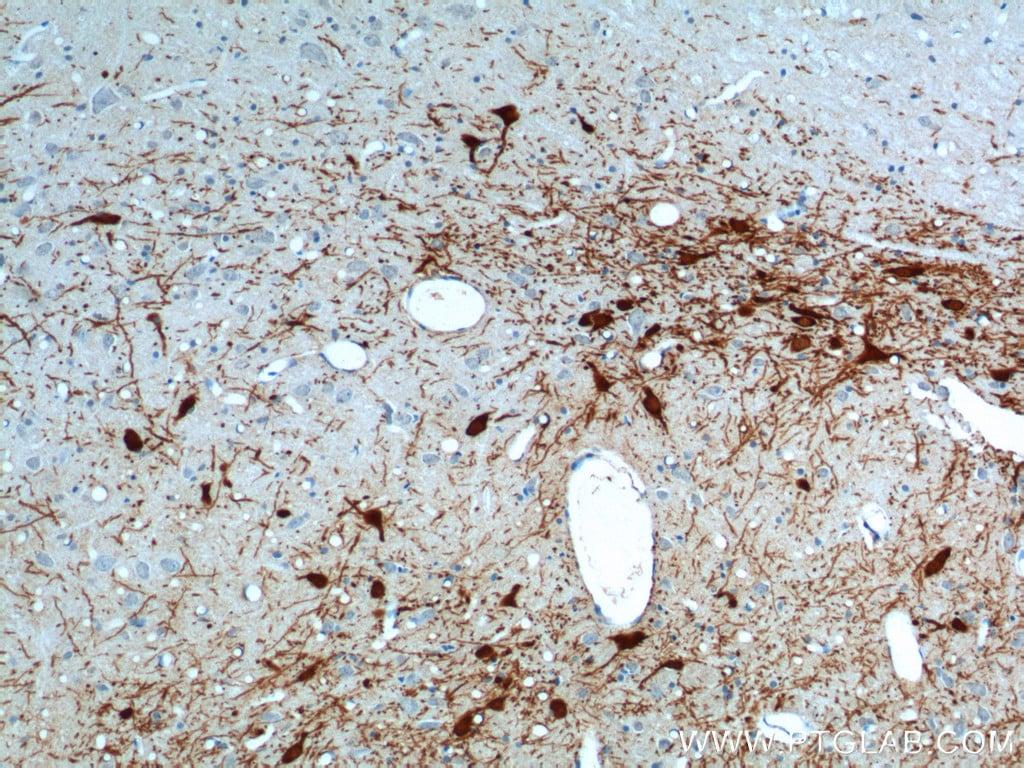 TH Antibody in Immunohistochemistry (Paraffin) (IHC (P))