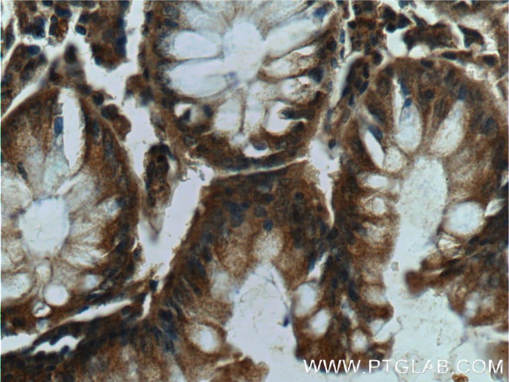 c-Met (Cytoplasmic) Antibody in Immunohistochemistry (Paraffin) (IHC (P))