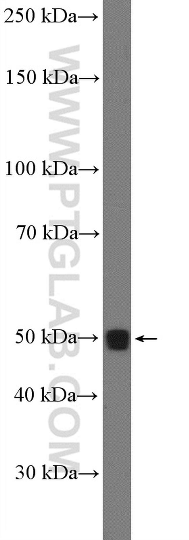 LIPF Antibody in Western Blot (WB)
