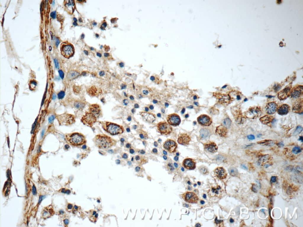 KIF5C Antibody in Immunohistochemistry (Paraffin) (IHC (P))