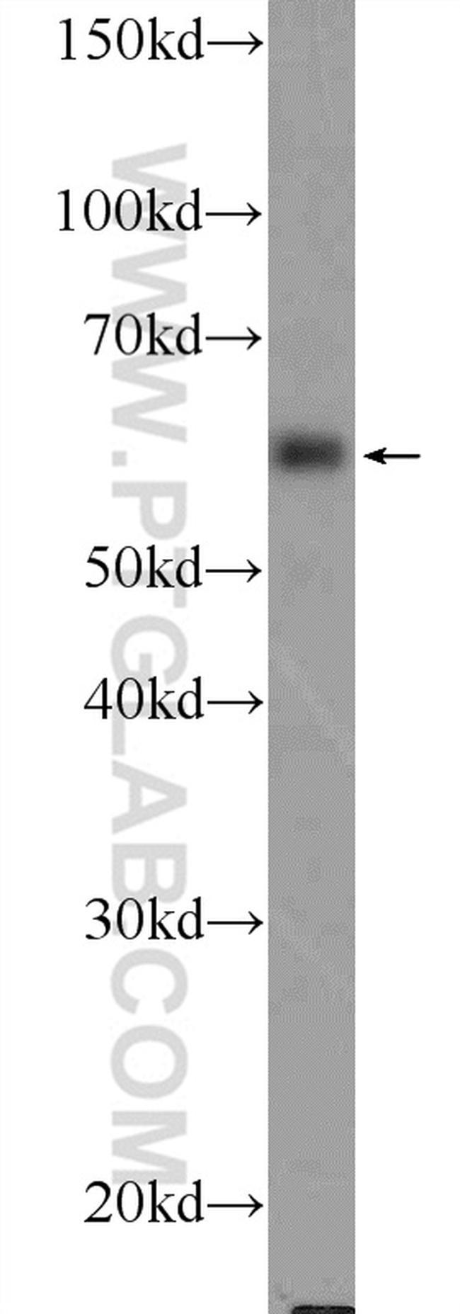 TCHP Antibody in Western Blot (WB)