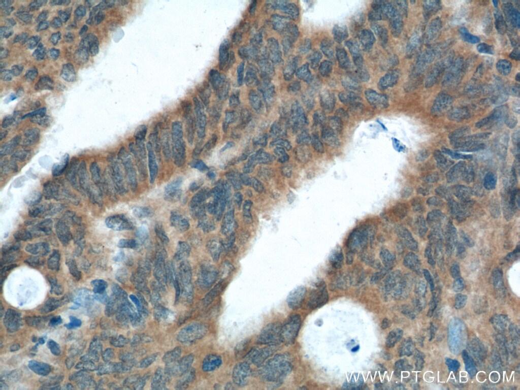 XBP1 Antibody in Immunohistochemistry (Paraffin) (IHC (P))