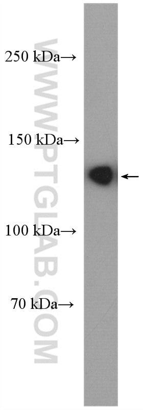 ECE1 Antibody in Western Blot (WB)