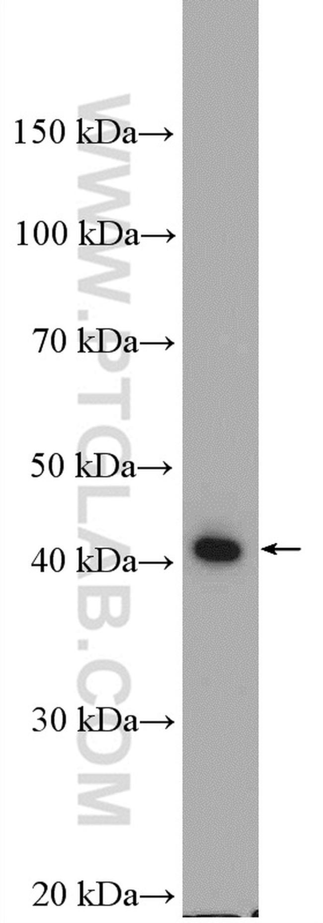 ABHD1 Antibody in Western Blot (WB)