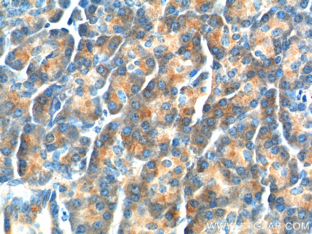 YRDC Antibody in Immunohistochemistry (Paraffin) (IHC (P))