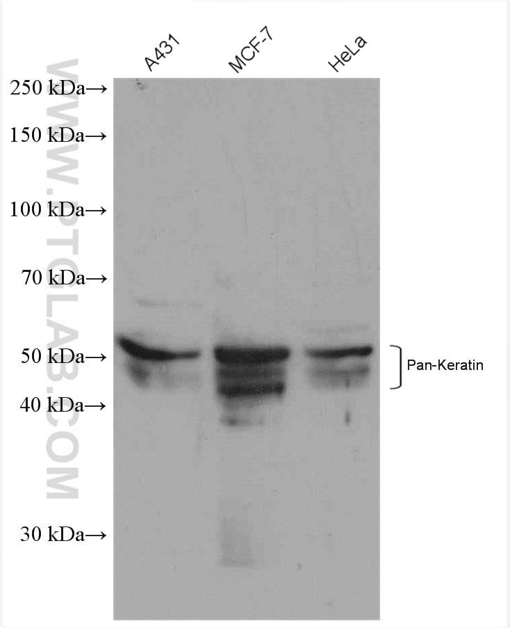 pan-keratin Antibody in Western Blot (WB)