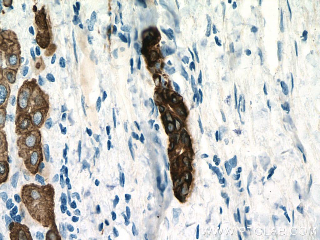pan-keratin Antibody in Immunohistochemistry (Paraffin) (IHC (P))