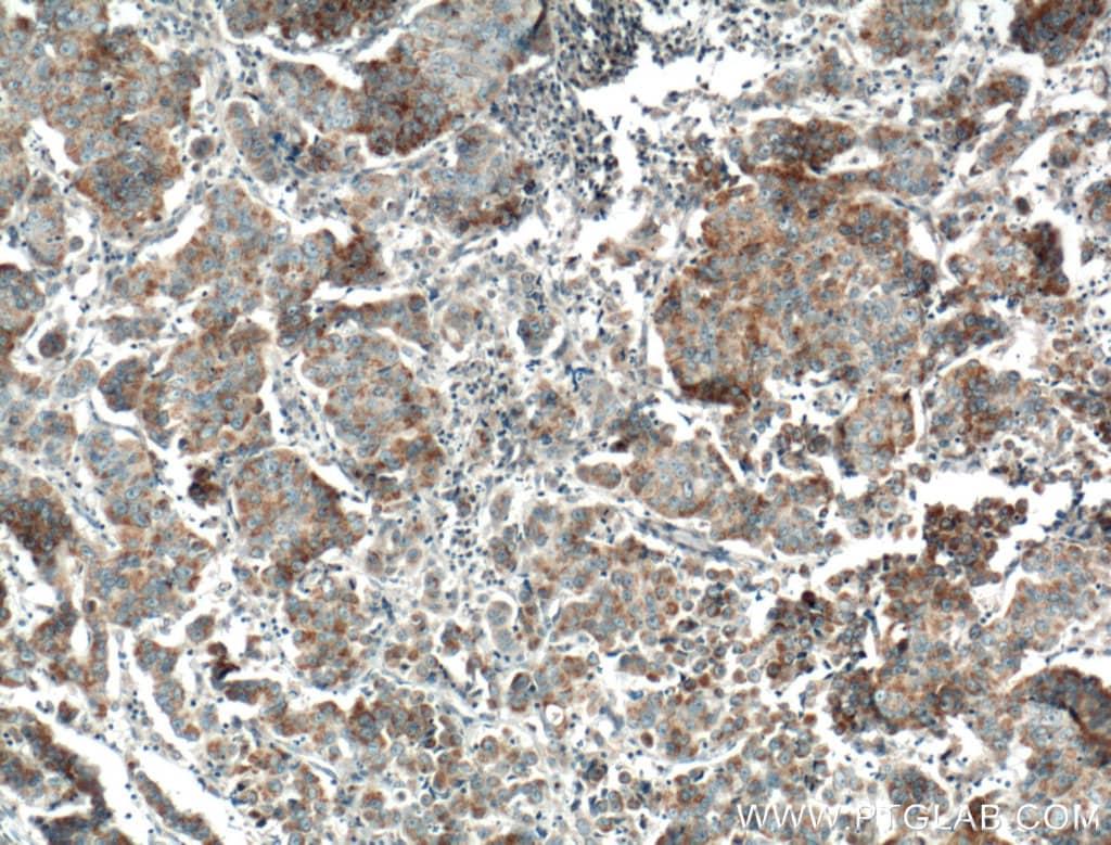 FGF9 Antibody in Immunohistochemistry (Paraffin) (IHC (P))