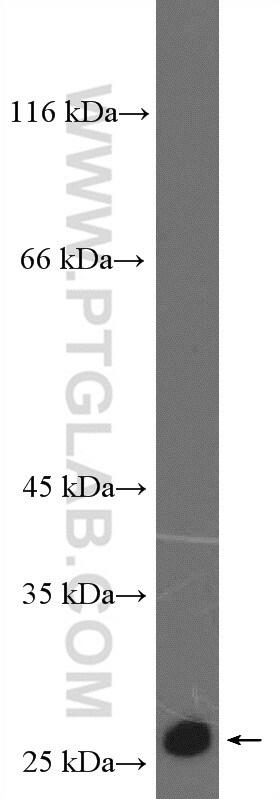 P27/KIP1 Antibody in Western Blot (WB)