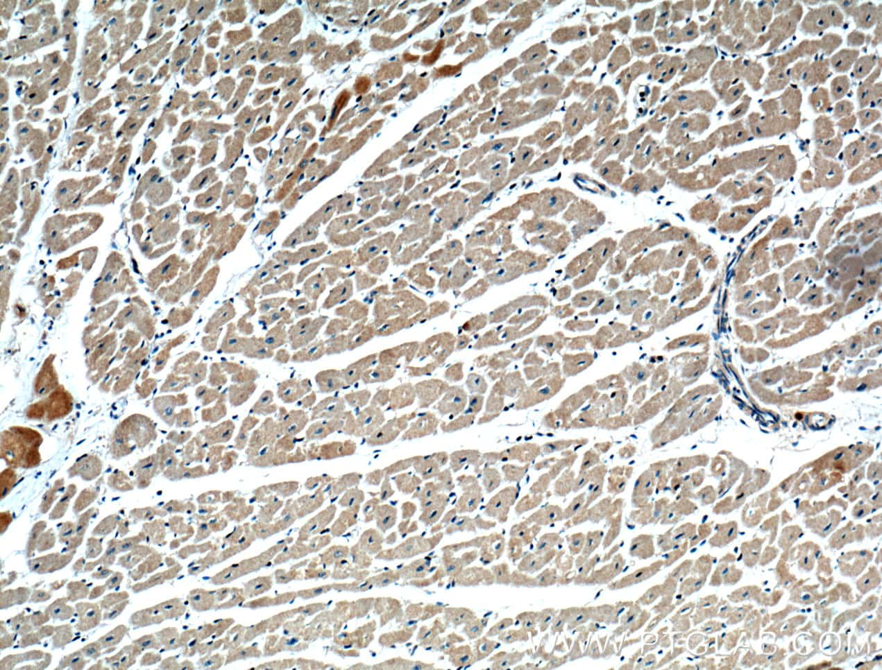 SAMD8 Antibody in Immunohistochemistry (Paraffin) (IHC (P))
