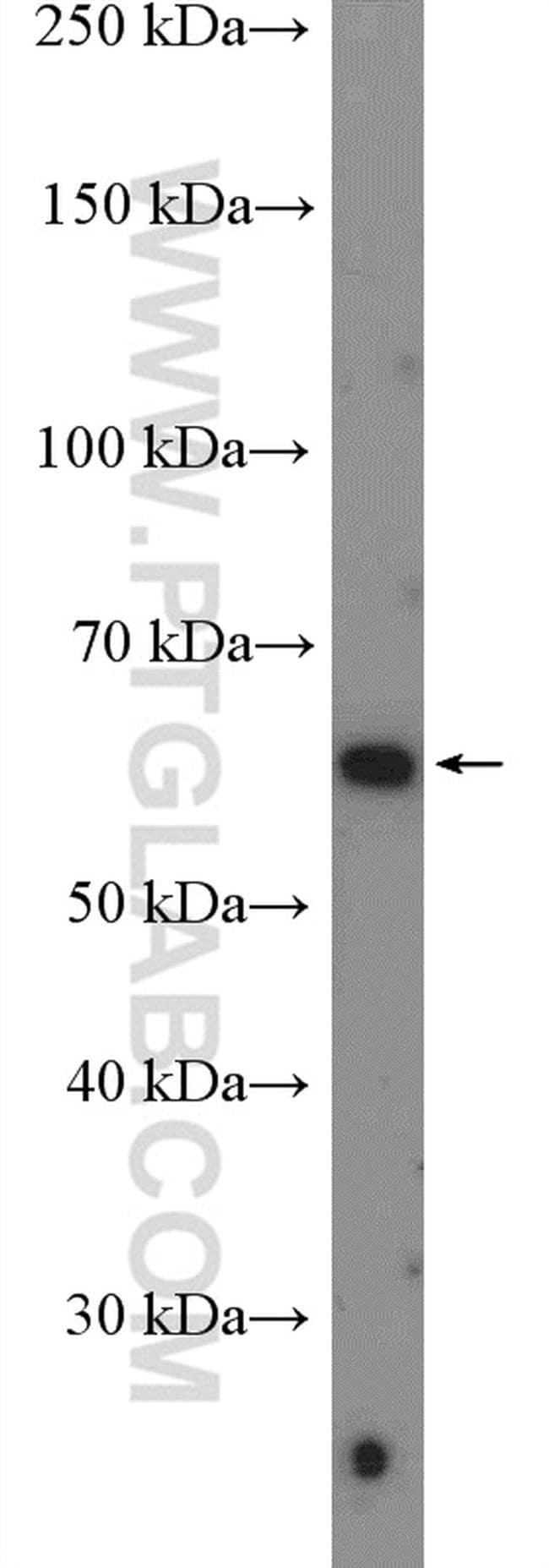 FLVCR1 Antibody in Western Blot (WB)