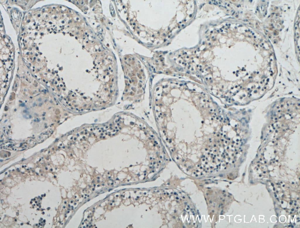 GnRH Antibody in Immunohistochemistry (Paraffin) (IHC (P))