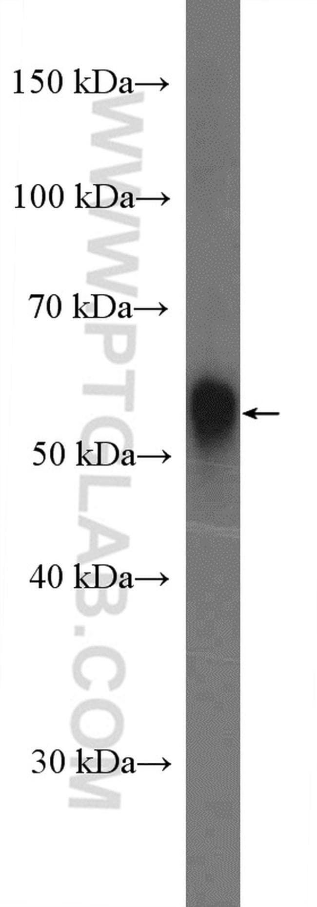 Perilipin 5 Antibody in Western Blot (WB)