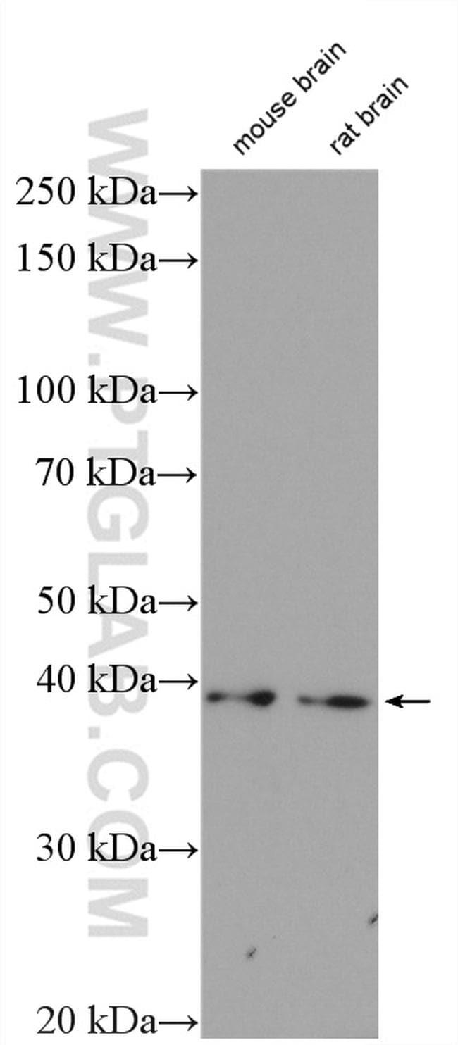 CDK5R2/p39 Antibody in Western Blot (WB)