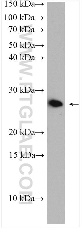 RAB10 Antibody in Western Blot (WB)