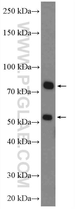 Factor XII Antibody in Western Blot (WB)