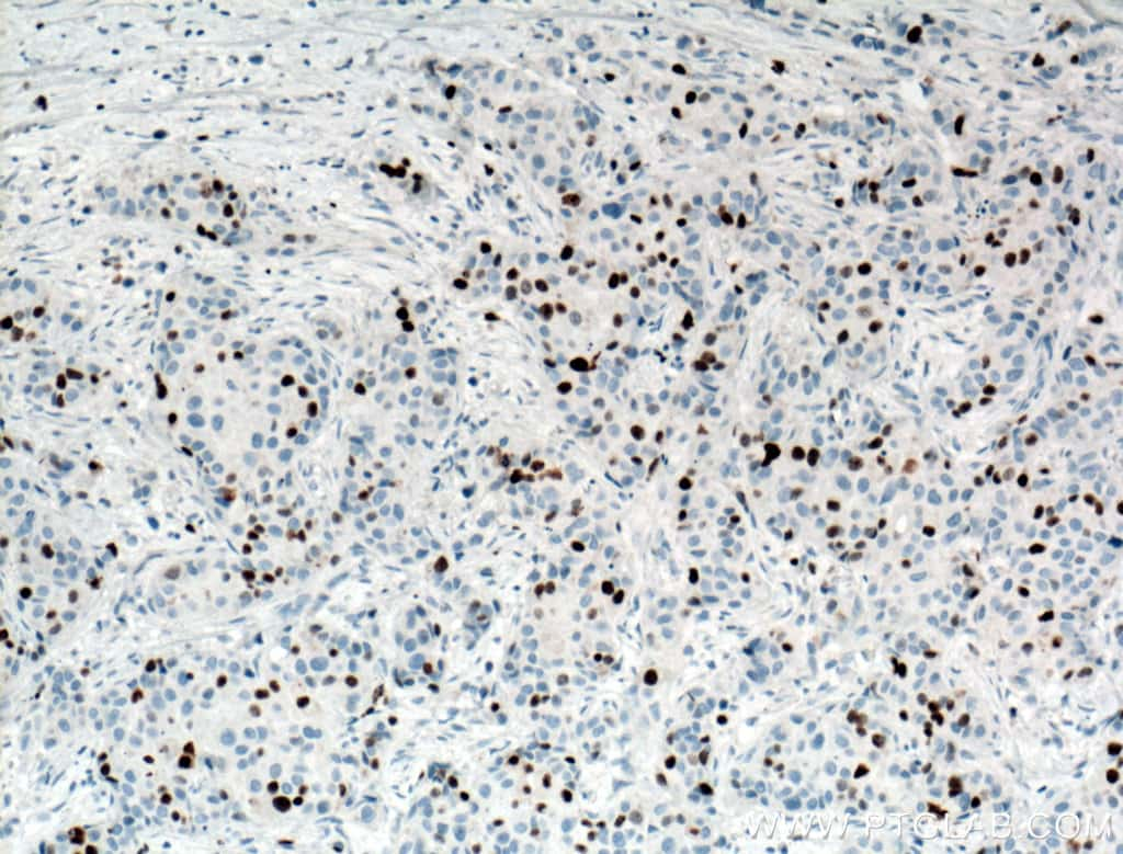 KI67 Antibody in Immunohistochemistry (Paraffin) (IHC (P))