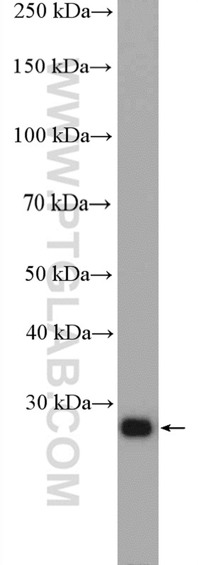 RAB34 Antibody in Western Blot (WB)