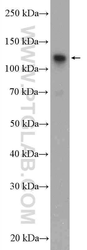 GTF3C2 Antibody in Western Blot (WB)