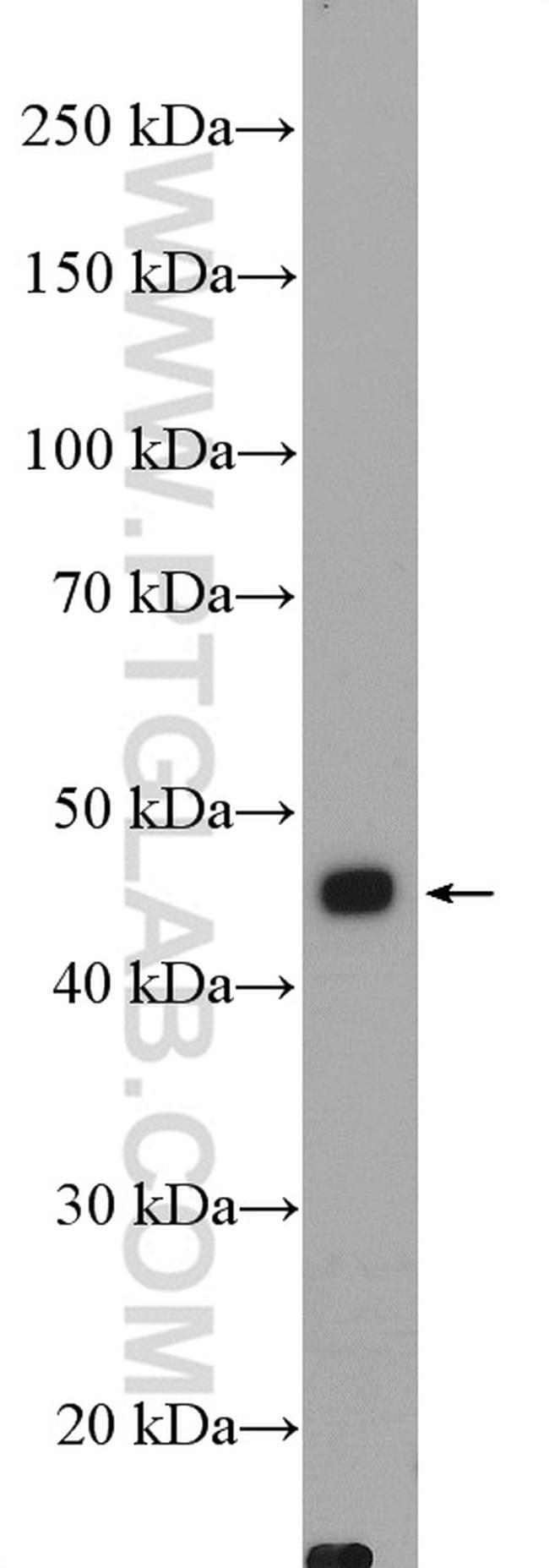 AKD2 Antibody in Western Blot (WB)