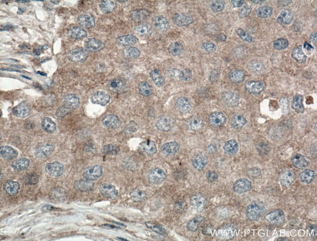 GLUT5 Antibody in Immunohistochemistry (Paraffin) (IHC (P))