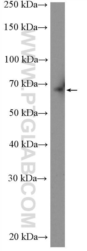 ABCG5 Antibody in Western Blot (WB)