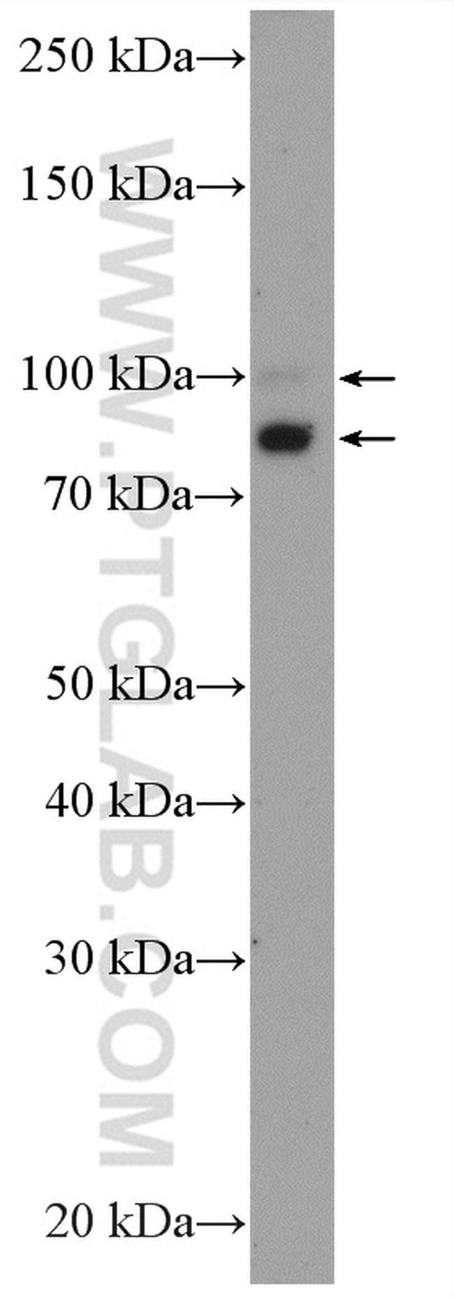 OPA1 Antibody in Western Blot (WB)