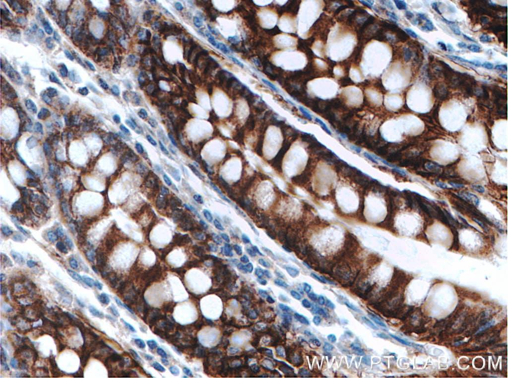 SLC26A2 Antibody in Immunohistochemistry (Paraffin) (IHC (P))