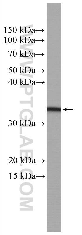 OSM Antibody in Western Blot (WB)