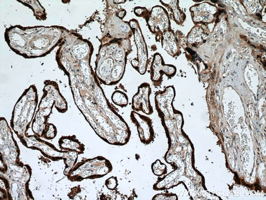 HSD17B1 Antibody in Immunohistochemistry (Paraffin) (IHC (P))