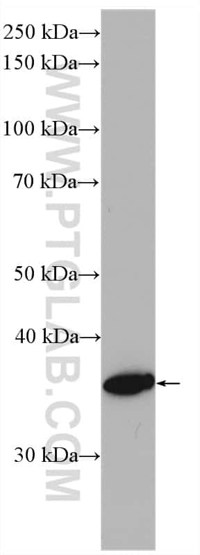 HSD17B1 Antibody in Western Blot (WB)