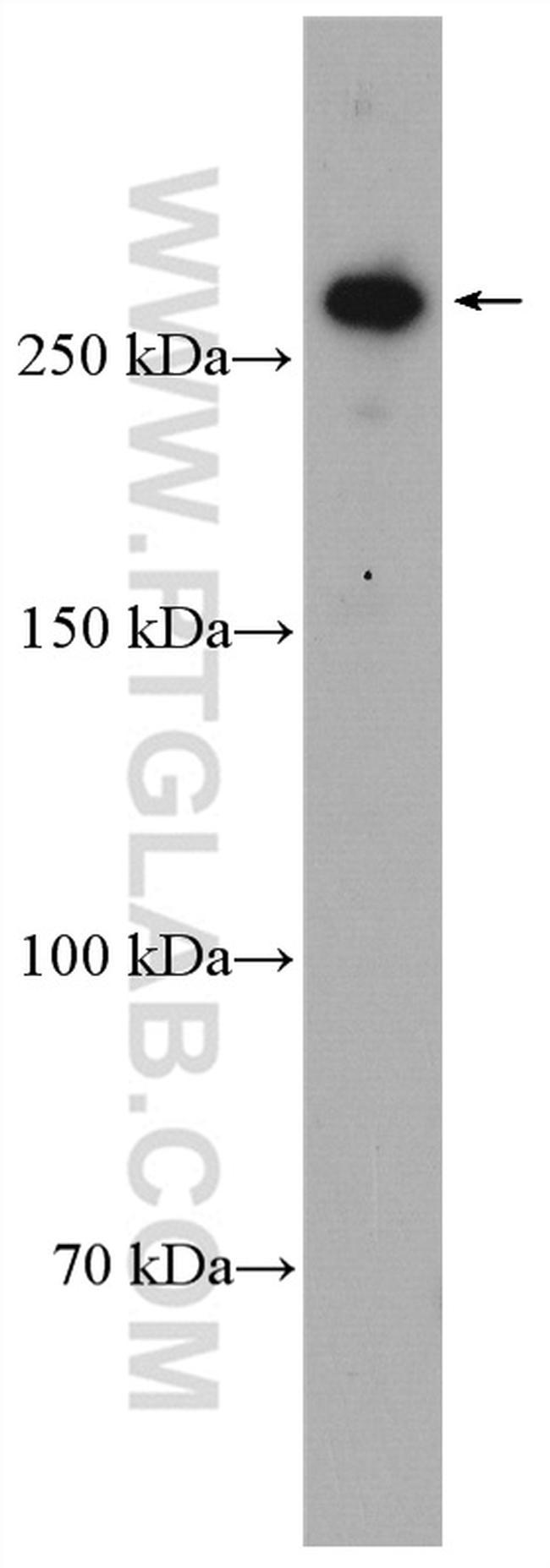 CENPE Antibody in Western Blot (WB)