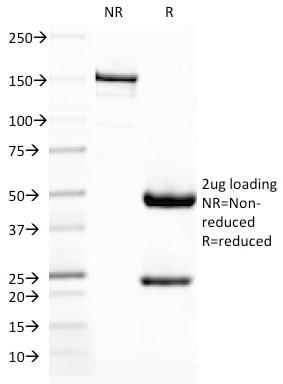 CD209/DC-SIGN (Pathogen Receptor on Dendritic Cells) Antibody