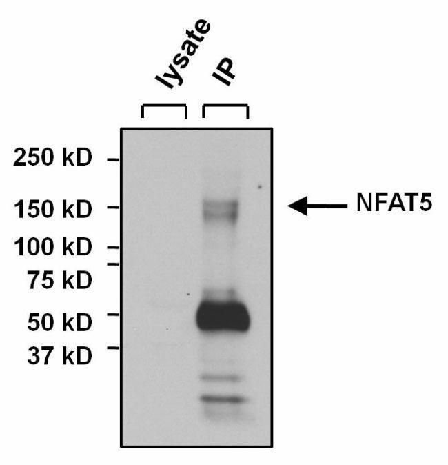 Rabbit IgG (H+L) Secondary Antibody in Immunoprecipitation (IP)