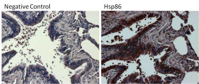 Rabbit IgG (H+L) Secondary Antibody in Immunohistochemistry (Paraffin) (IHC (P))