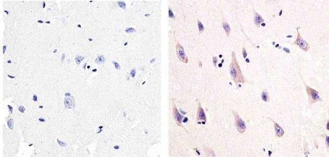 NMDAR1 Antibody in Immunohistochemistry (Paraffin) (IHC (P))