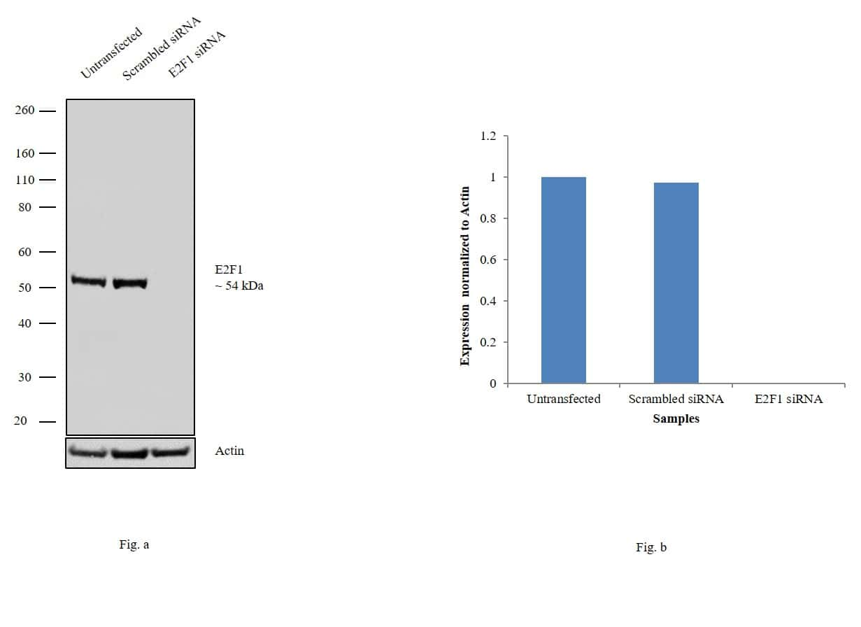E2F1 Antibody in Knockdown
