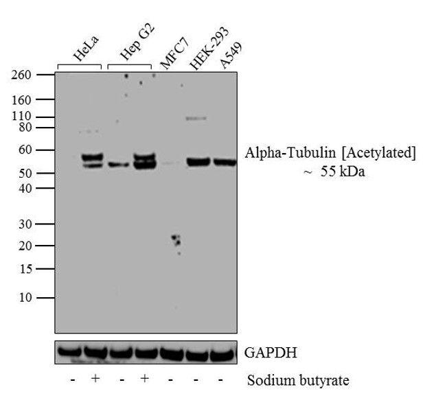 Acetyl-alpha Tubulin (Lys40) Antibody in Western Blot (WB)