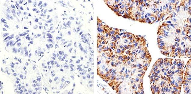 Claudin 2 Antibody in Immunohistochemistry (Paraffin) (IHC (P))